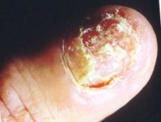 ногти после Кандидоза, после приема антибиотиков