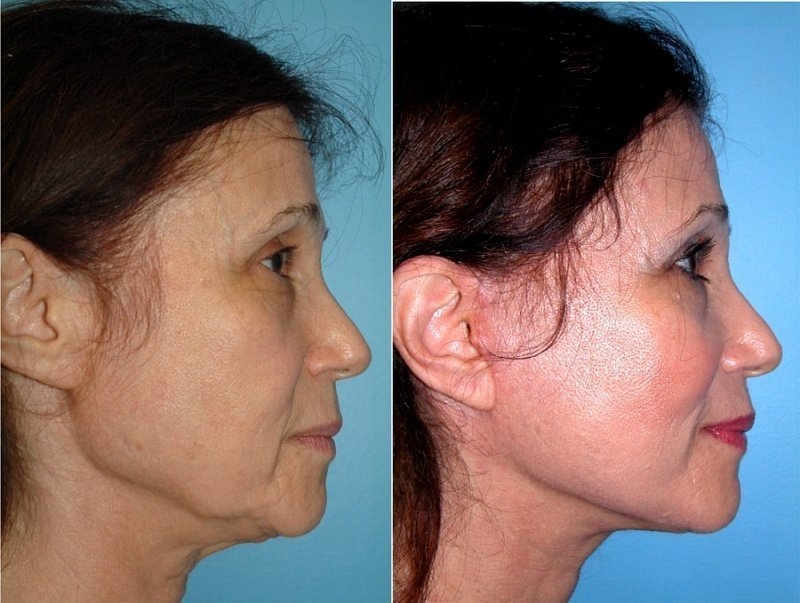 Круговая подтяжка лица и шеи нитями коги
