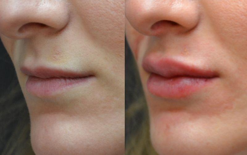 Контурная пластика губ: фото до и после