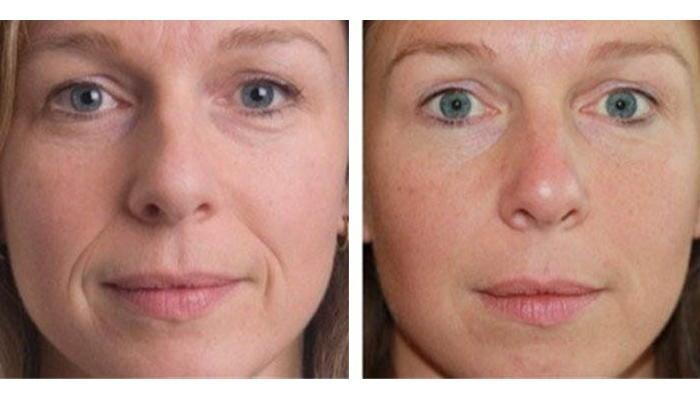 контурная пластика глаз до и после