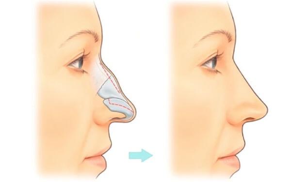 Коррекция носа филлерами фото до и после