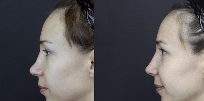 Как исправить курносый нос?