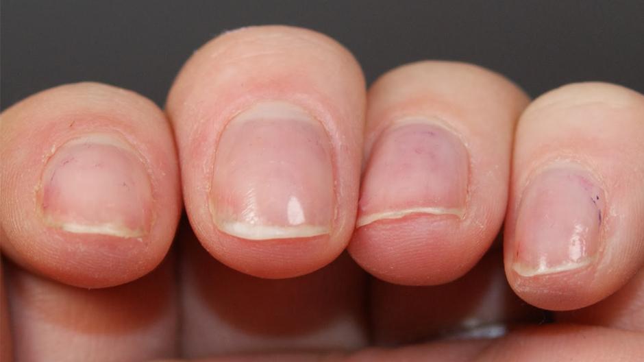 Ломкие ногти.