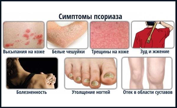 Лопается и облезает кожа на пальцах рук, кончиках, подушечках, ладонях. Причины и лечение