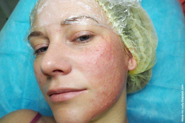 сыпь после инъекций