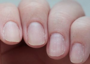 дистрофия ногтя после маникюра