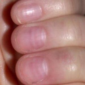 дистрофия ногтей вызванная маникюром