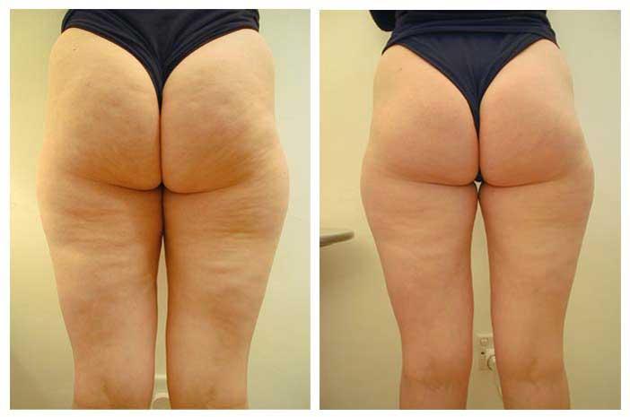 Мезотерапия: фото до и после процедуры