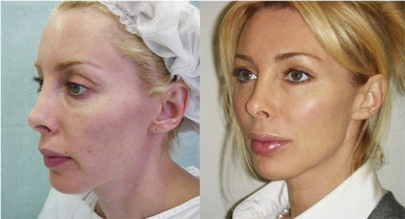 Мезонити для подтяжки лица — эффект от процедуры, отзывы, фото до и после