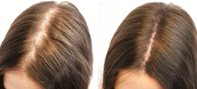 фото до и после мезотерапии волос