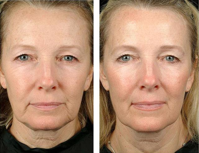 нехирургическая подтяжка лица нитями аптос