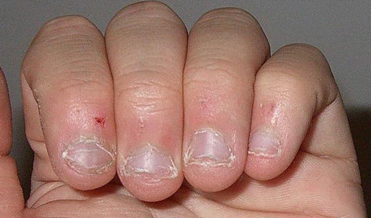 Какой выбрать лак для ногтей чтобы не грызть ногти