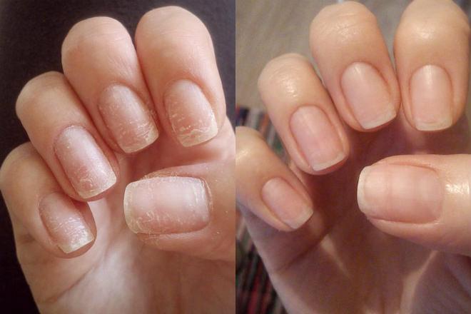 так выглядят ногти до и после маски с йодом
