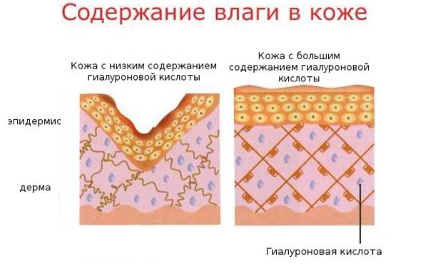 nosogubki-do-i-posle-fillerov-111.jpg