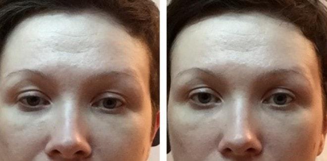 косметика либридерм отзывы косметологов для 35 лет