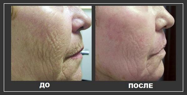 Фото до и после курса процедур плазмолифтинга №3