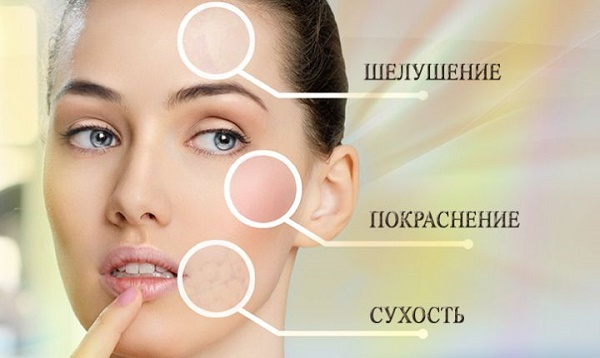 Пилинги для лица с кислотами: профессиональные составы для домашнего использования. Эффективность и как пользоваться