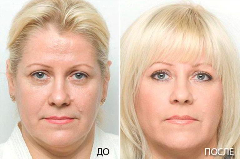 Клиент до и после фото