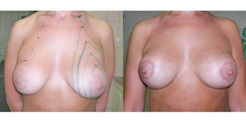 подтяжка груди нитями фото до и после