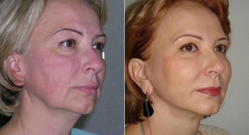 Подтяжка щек и устранение носогубных складок