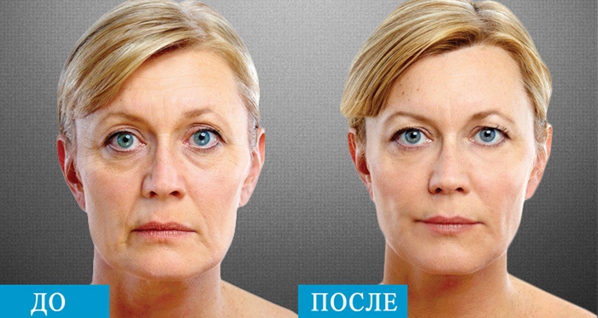 Лицо до и после курса электротерапии