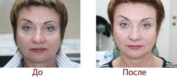 Фото до и после курса процедур плазмолифтинга №2