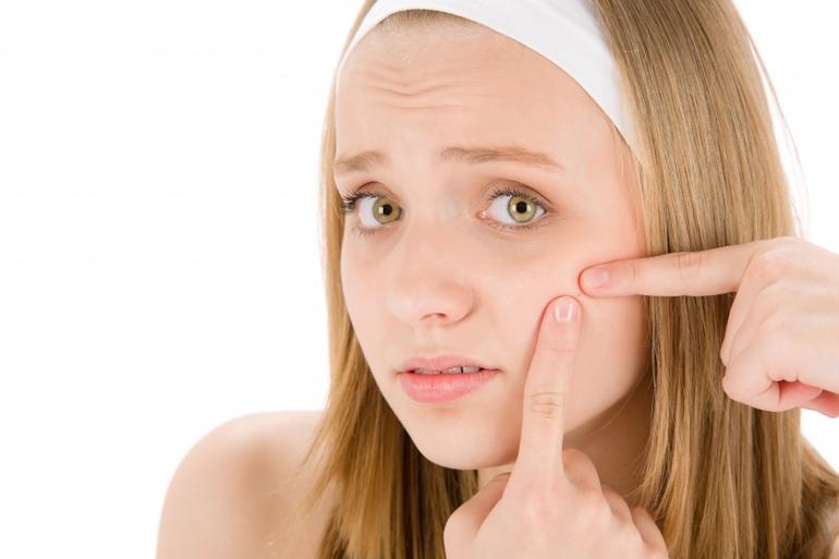 Проблемная кожа юношей и девушек