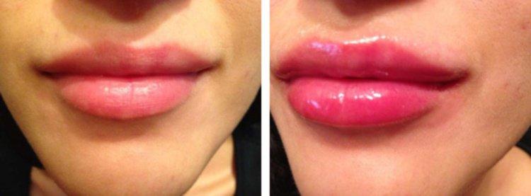 С помощью геля можно приподнять уголки губ