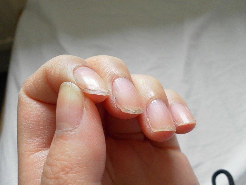 Слоящиеся ногти.