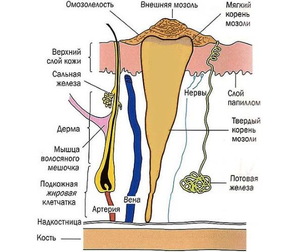 Стержневая мозоль на ступне ноги, пальце. Фото, лечение и удаление, пластырь