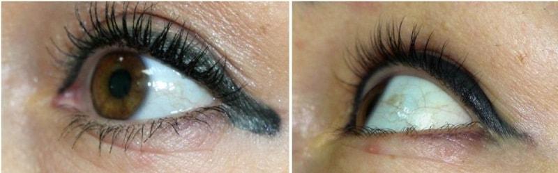 лазерное удаление татуажа глаз