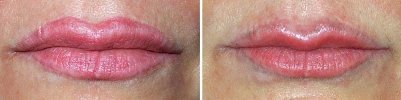 лазерное удаление татуажа губ