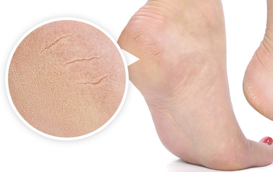 Трещины на пятках часто возникают из-за сухости кожи