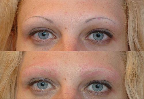 фото до и после лазерного удаления татуажа 3