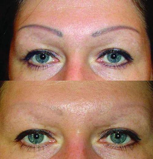 фото до и после лазерного удаления татуажа 4