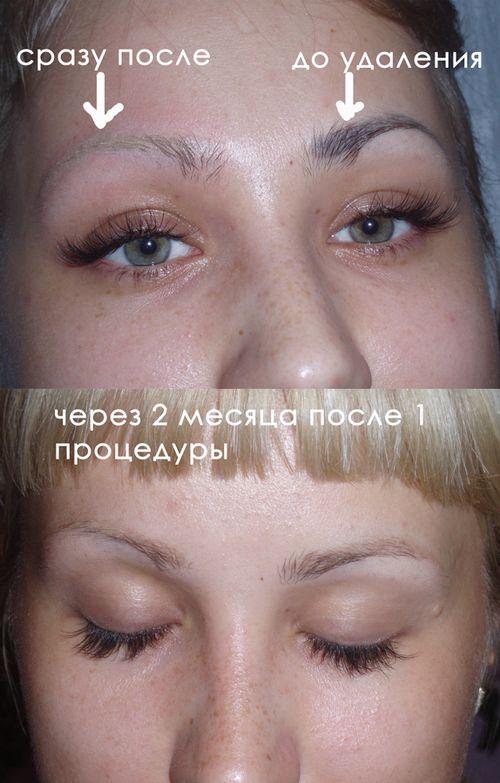 фото до и после лазерного удаления татуажа 5
