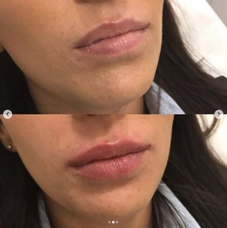 увеличение губ филлерами фото до и после