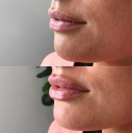 красивое увеличение губ фото