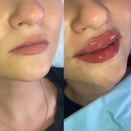 увеличение губ фото до и после