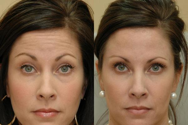 Фото до и после процедуры с использованием Релатокса
