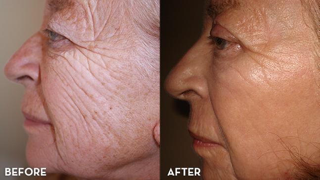 Химический пилинг отшелушивает верхний слой кожи
