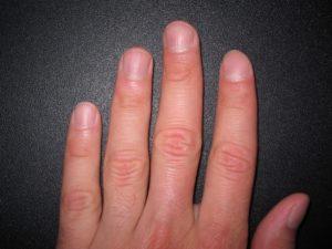 Вмятины на ногтях рук