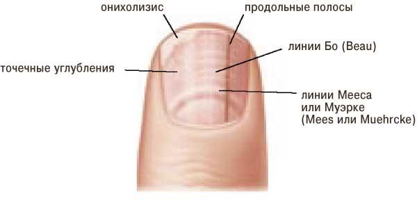 Точки на ногтевой пластине