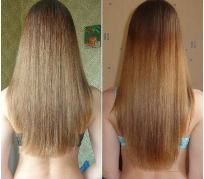 волосы до и после касторового масла фото 1