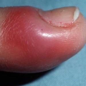 Почему может появиться воспаление около ногтя большого пальца ноги