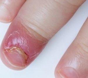 воспаление пальца ребенка
