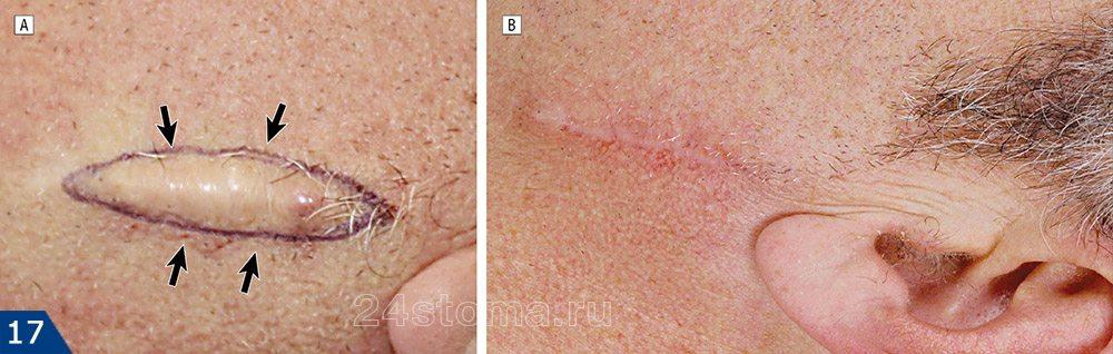 Хирургическое удаление келлоидного рубца: фото до и после