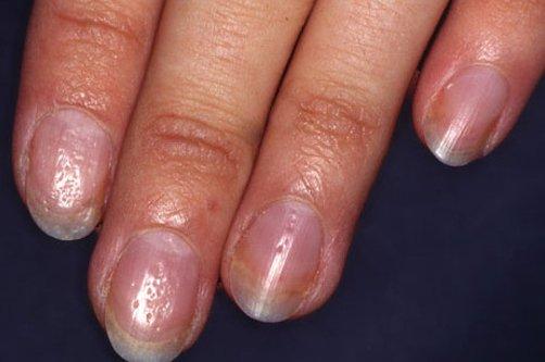 Ямки на ногтях рук.