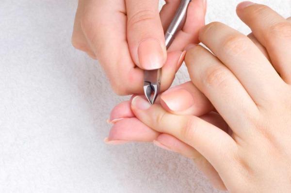 Заусенцы на пальцах рук. Причины у детей, взрослых. Как избавиться, если нарывает, воспалилась, оторвалась